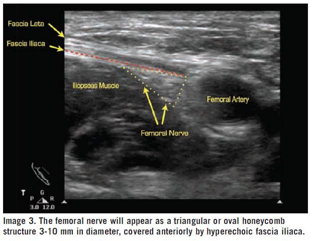 Additional ultrasound imaging of femoral nerve block anatomy.
