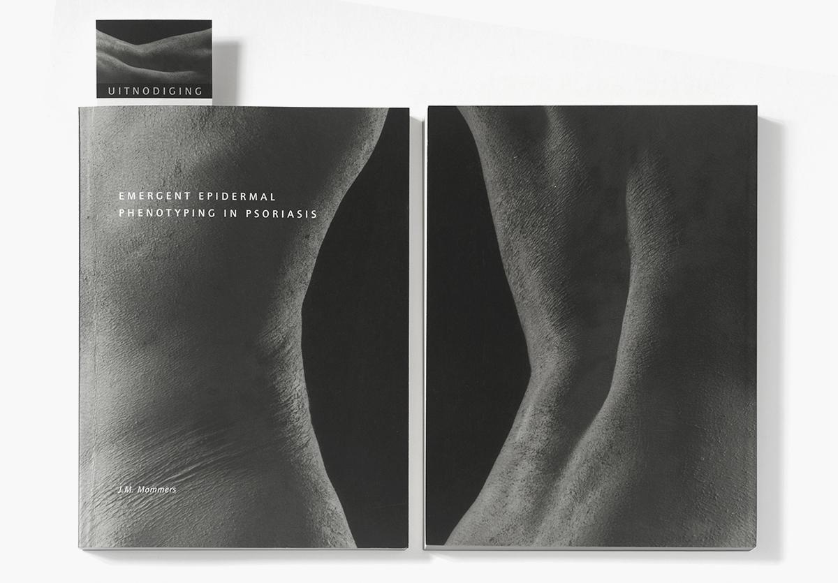 psoriasis-bookcover.jpg
