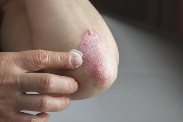 psoriasis_elbow