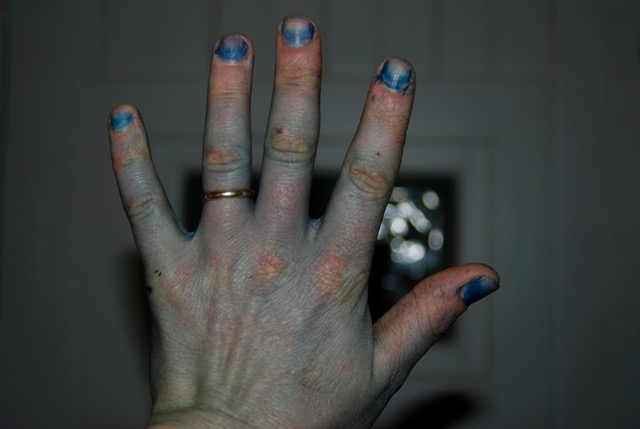 Indigo dyes fingernails especially well.