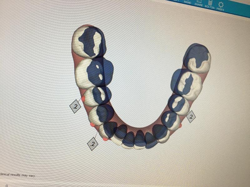 06PT-hal_Teeth moving.jpg