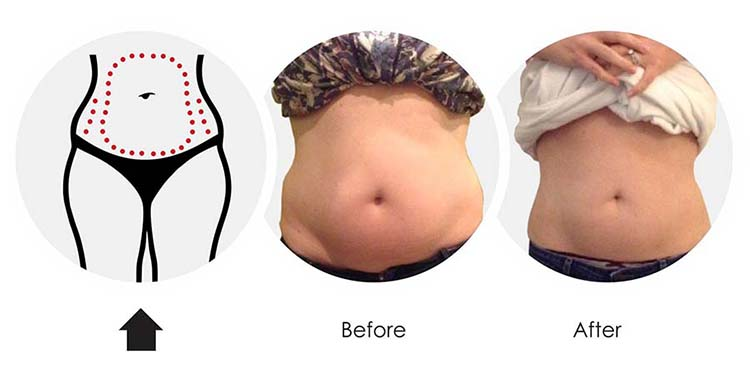 torc-body-results-3.jpg