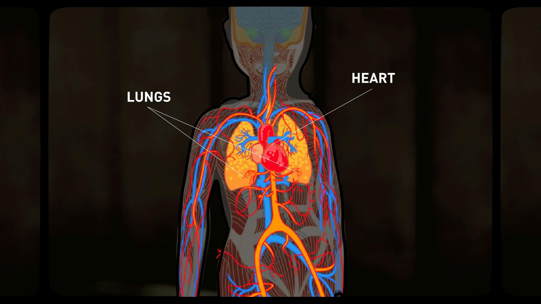 Portfolio-Rheum-Lupus-Anatomy.jpg