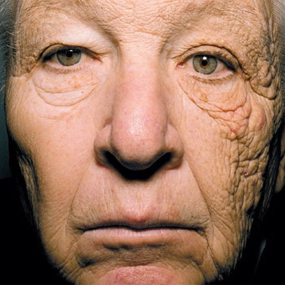 Actual image of a truck driver and the sun damage done to his side of the face from the drivers side window.