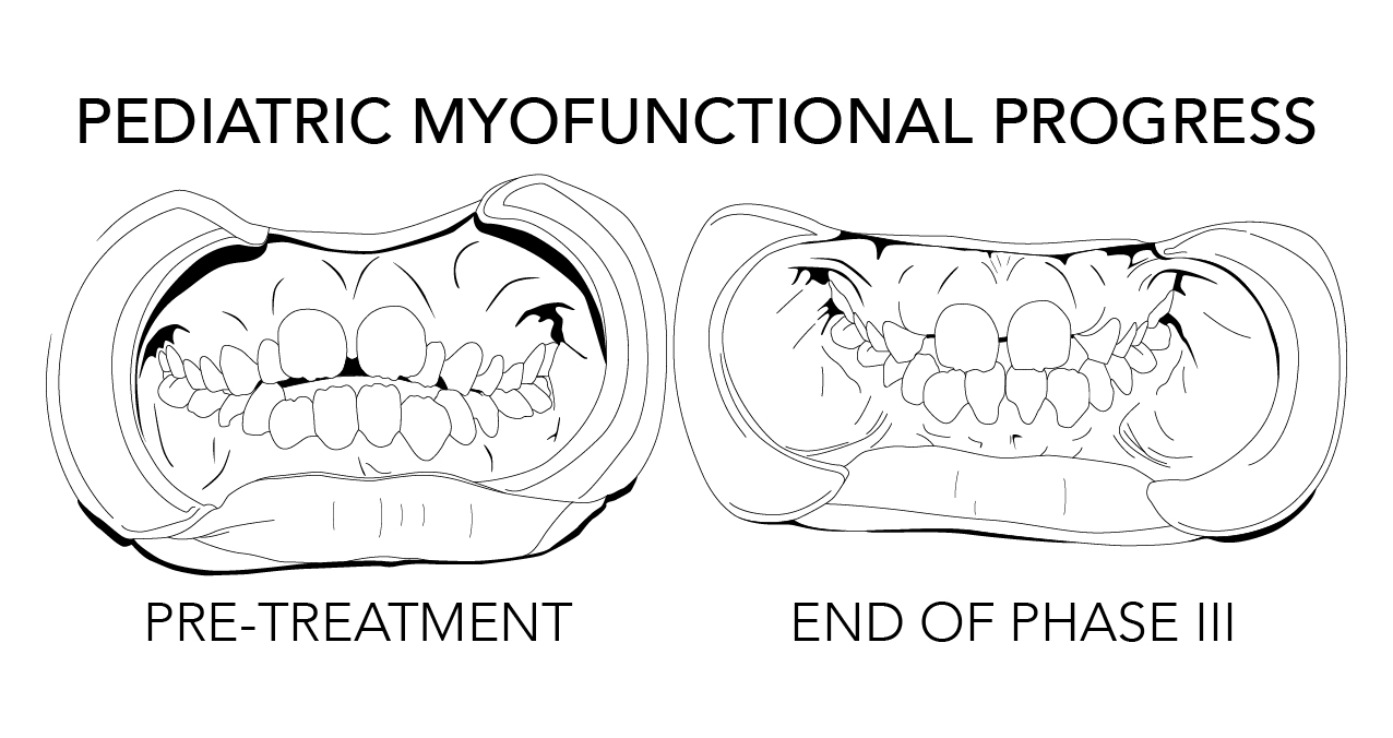 Myofunctional Progress -01.jpg