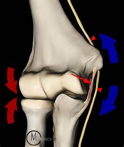 source: http://radsource.us/ulnar-collateral-ligament-tears-of-the-elbow/