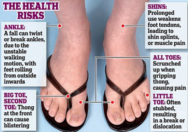 source:http://runhealthylifestyle.com/2016/08/25/careful-flip-flops-dangerous-summer-choice/