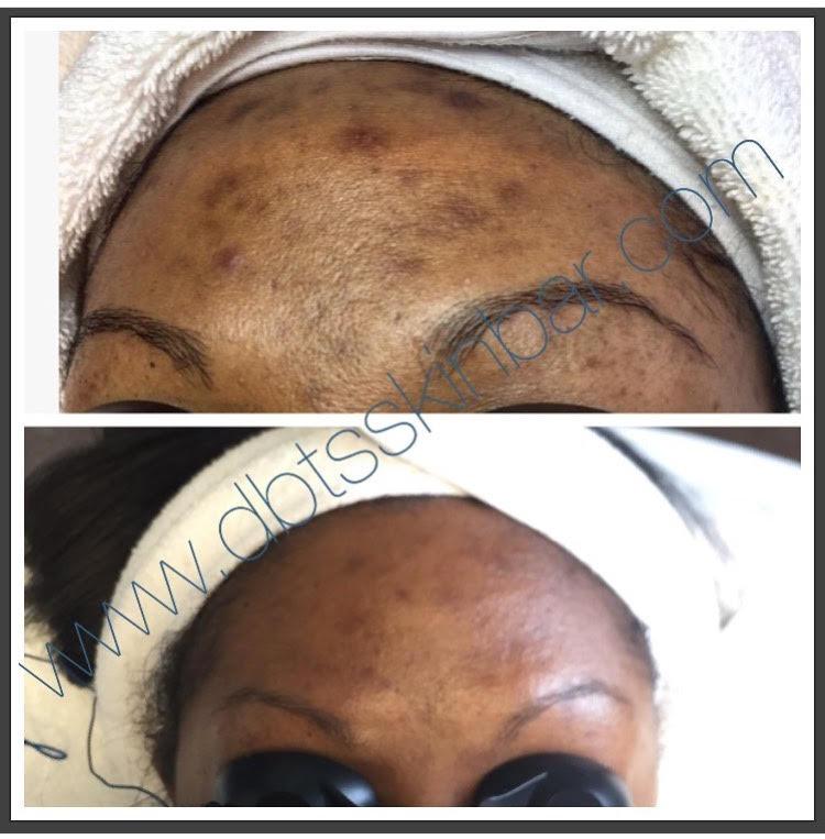 Tisha Forehead.jpg