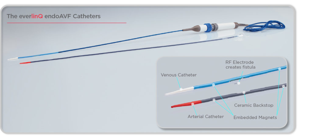 everlinQ endoAVF Catheter (Image from www.tvamedical.com)