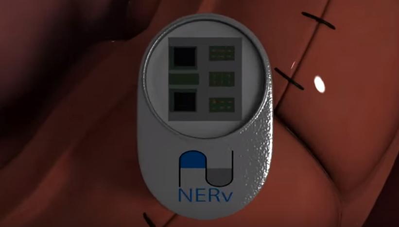 Screenshot from www.ne-rv.com/