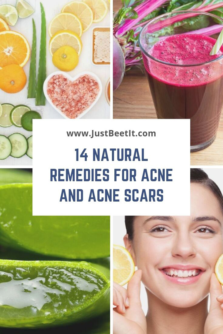 14 Easy And Natural Remedies To Remove Acne And Acne Scars Just Beet It