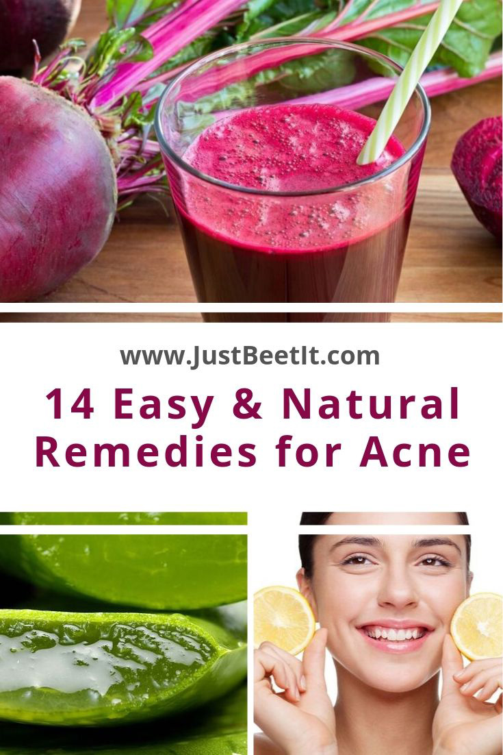 14 Easy and Natural Remedies for Curing Acne and Acne Scars.jpg