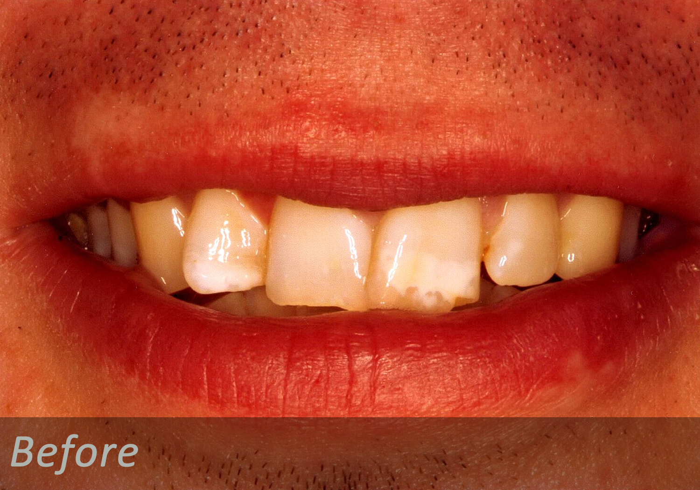 NW Dental - 041-1.jpg