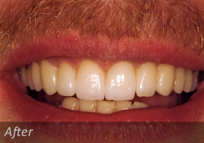 NW Dental - 043-2.jpg