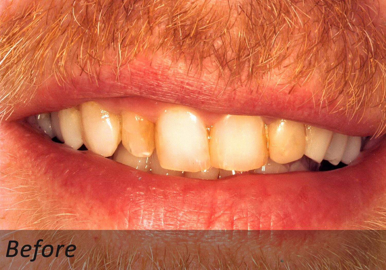 NW Dental - 043-1.jpg