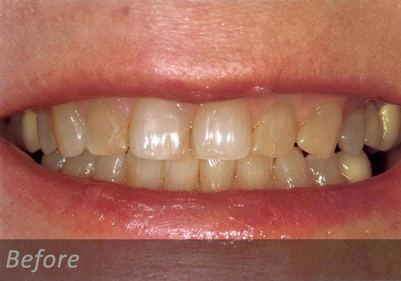 NW Dental - 042-1.jpg