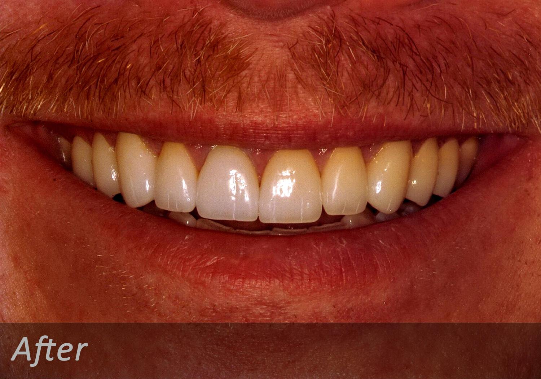 NW Dental - 045-1.jpg