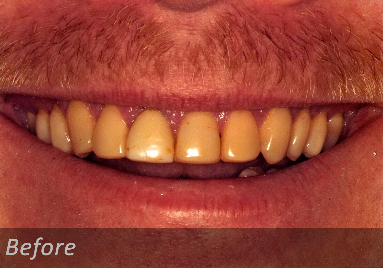NW Dental - 045-3.jpg