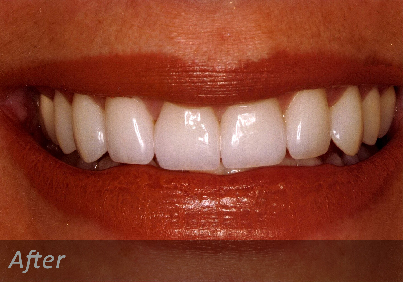 NW Dental - 046-2.jpg
