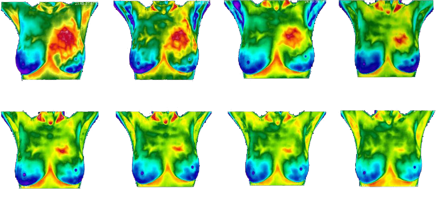 These thermograms show the abnormal area (shown in red) decreasing over multiple visits in reaction to making recommended changes to improve breast health.