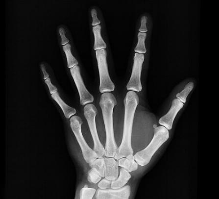 x-ray-1704855_640.jpg