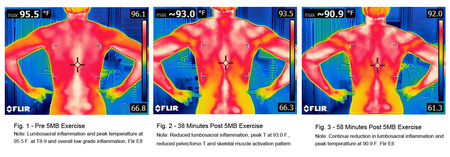 5MinuteBack Thermo Imaging