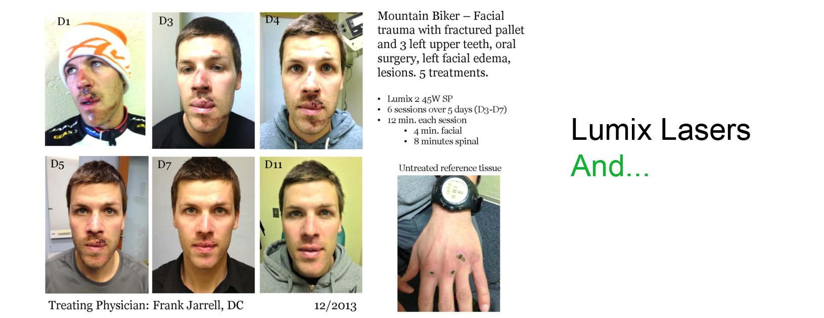 Lumix Laser & SRA Wound Healing