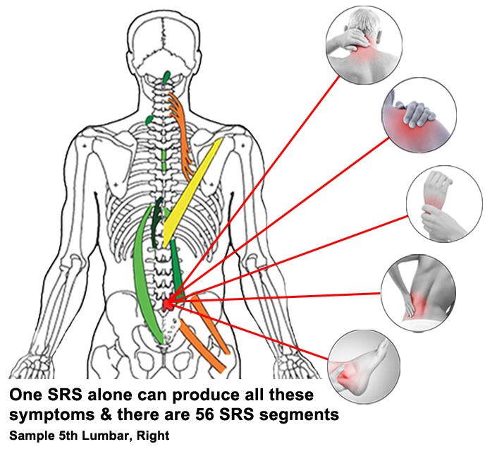 Spinal Reflex L5R sample