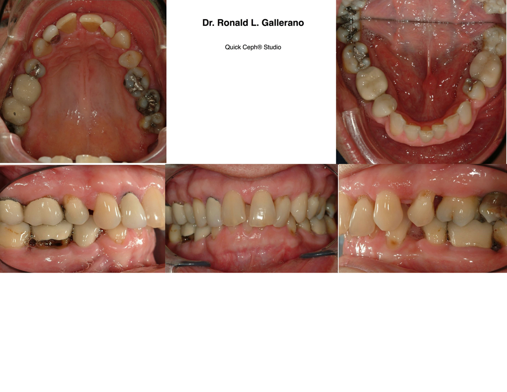 M.D. (45) - Before