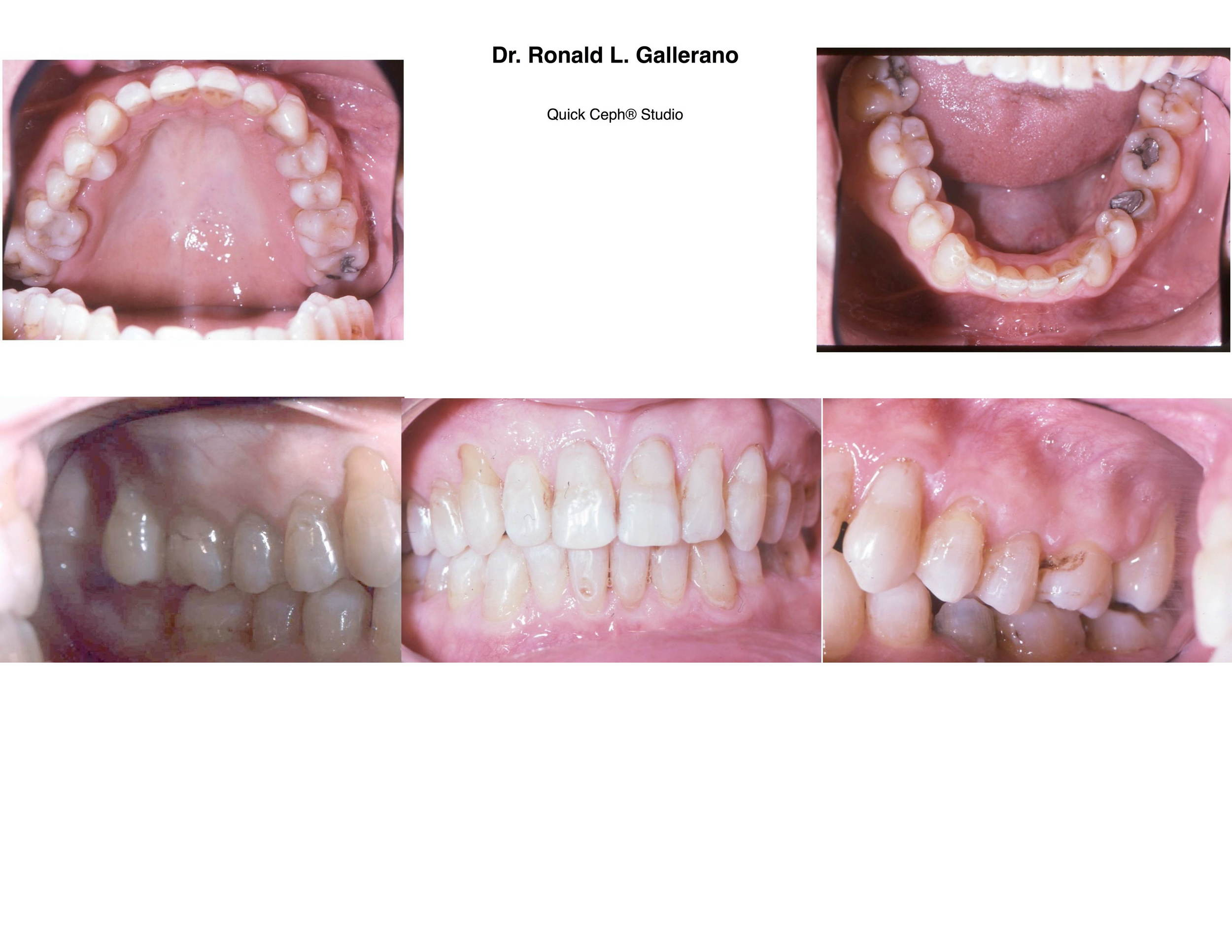 G.H. - After orthodontics