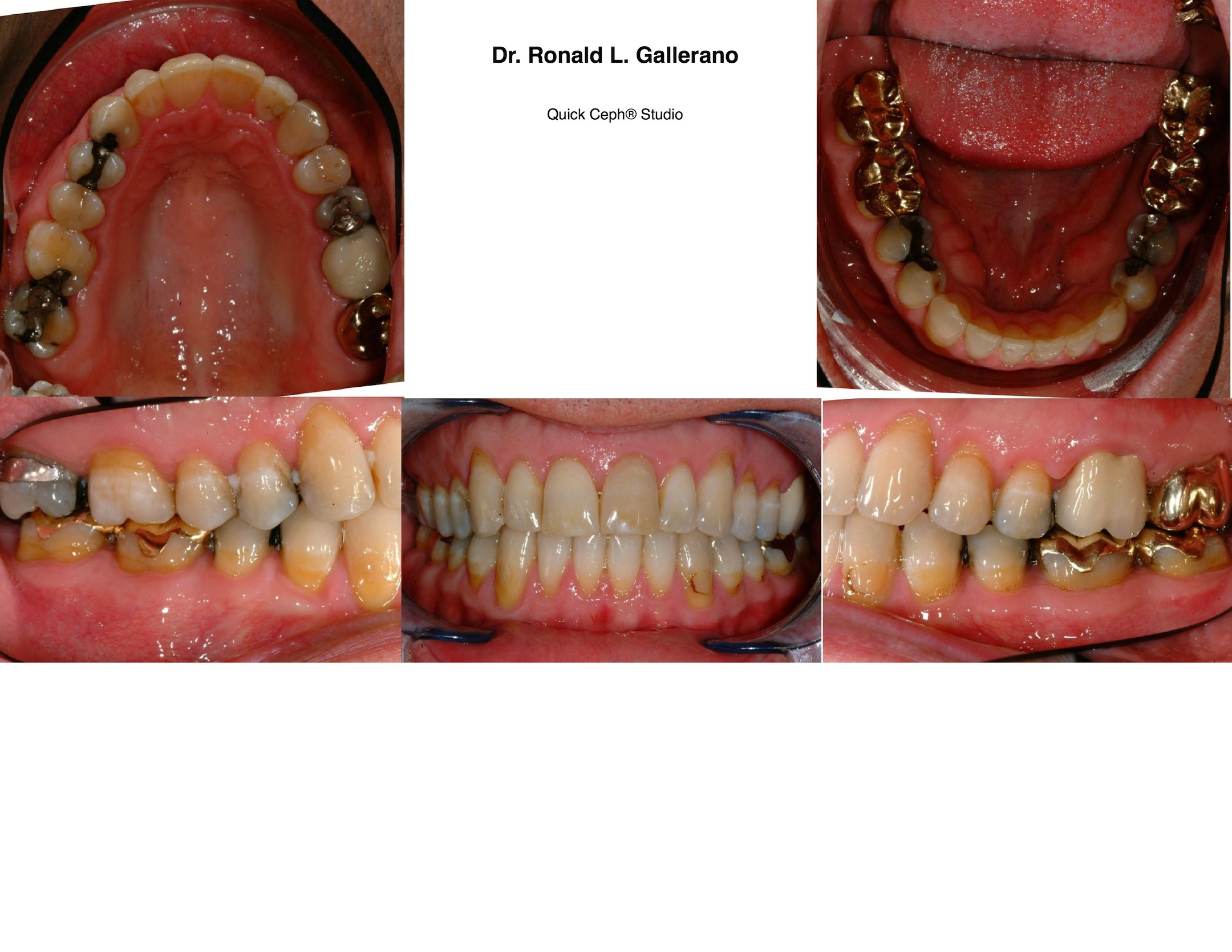 B.C. (46y, 9m) After