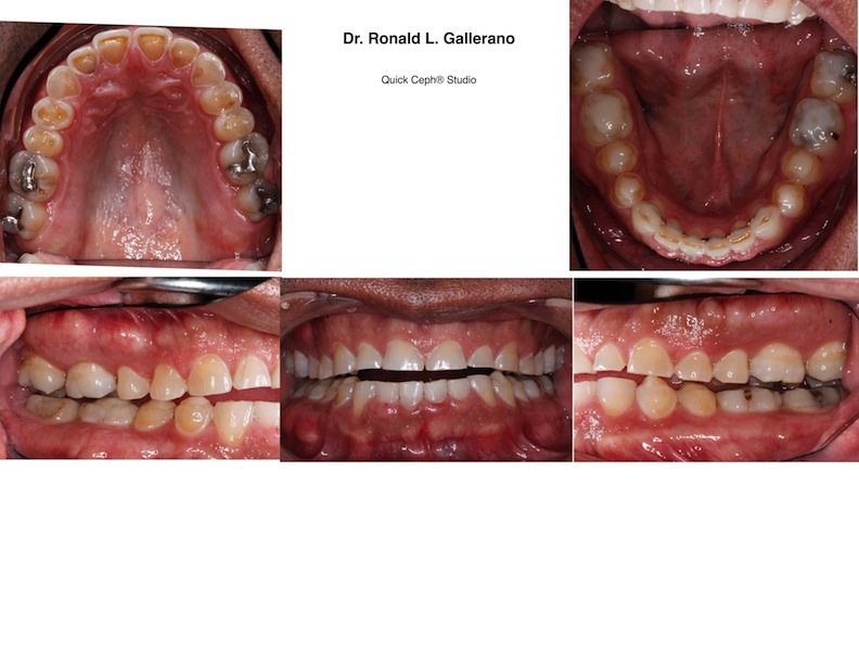 T.R. (48) After ortho