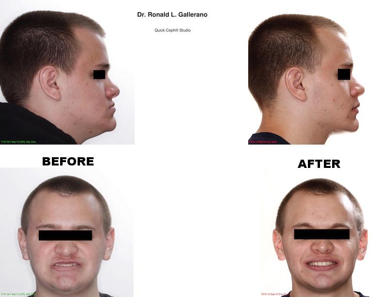 Comparison-Web-profile + smile.jpg