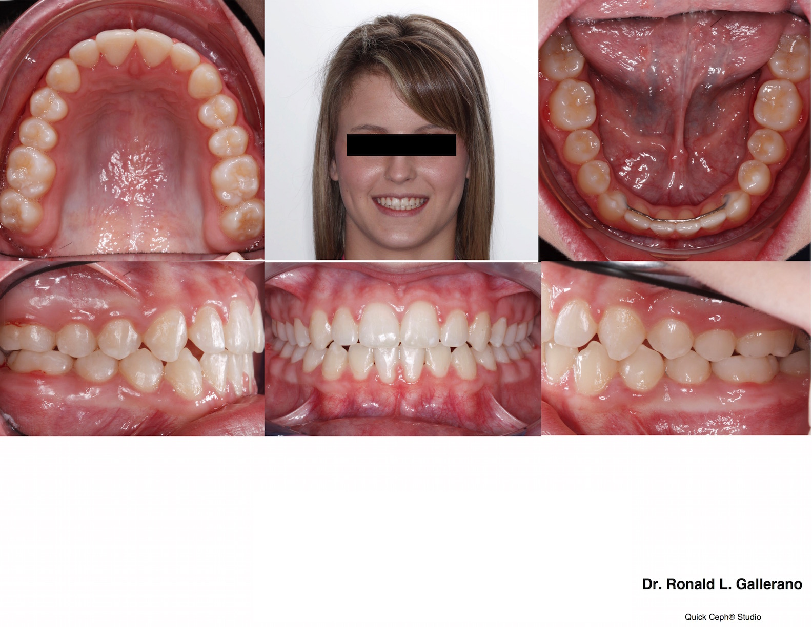 T. W. (15y, 3m) post braces