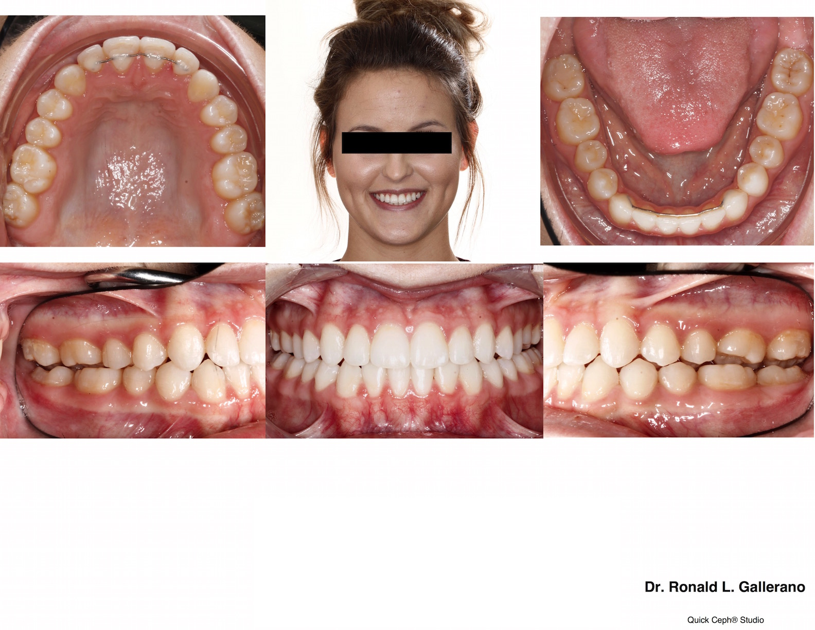 T. W. (20y, 3m) After