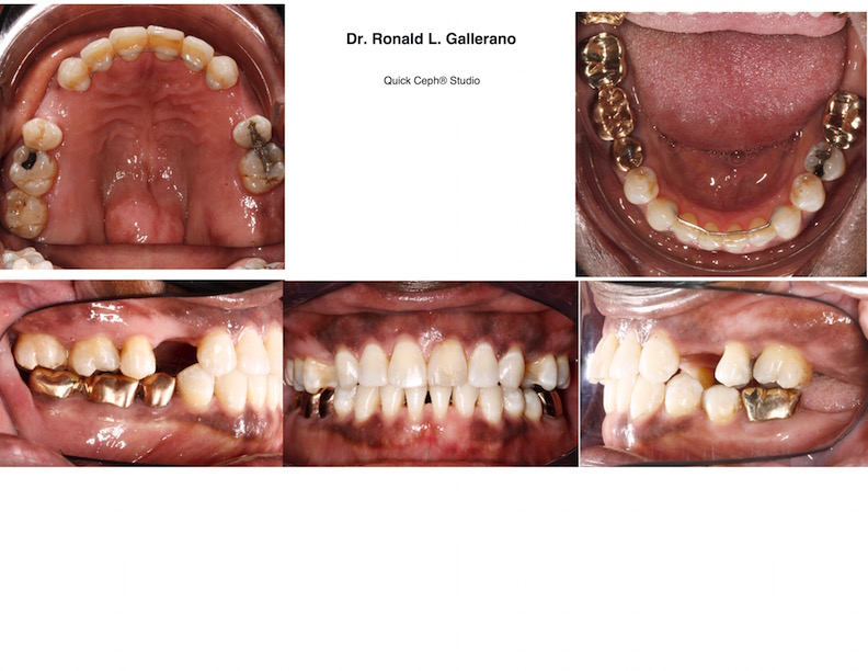 M. C. (67y, 8m) After Invisalign