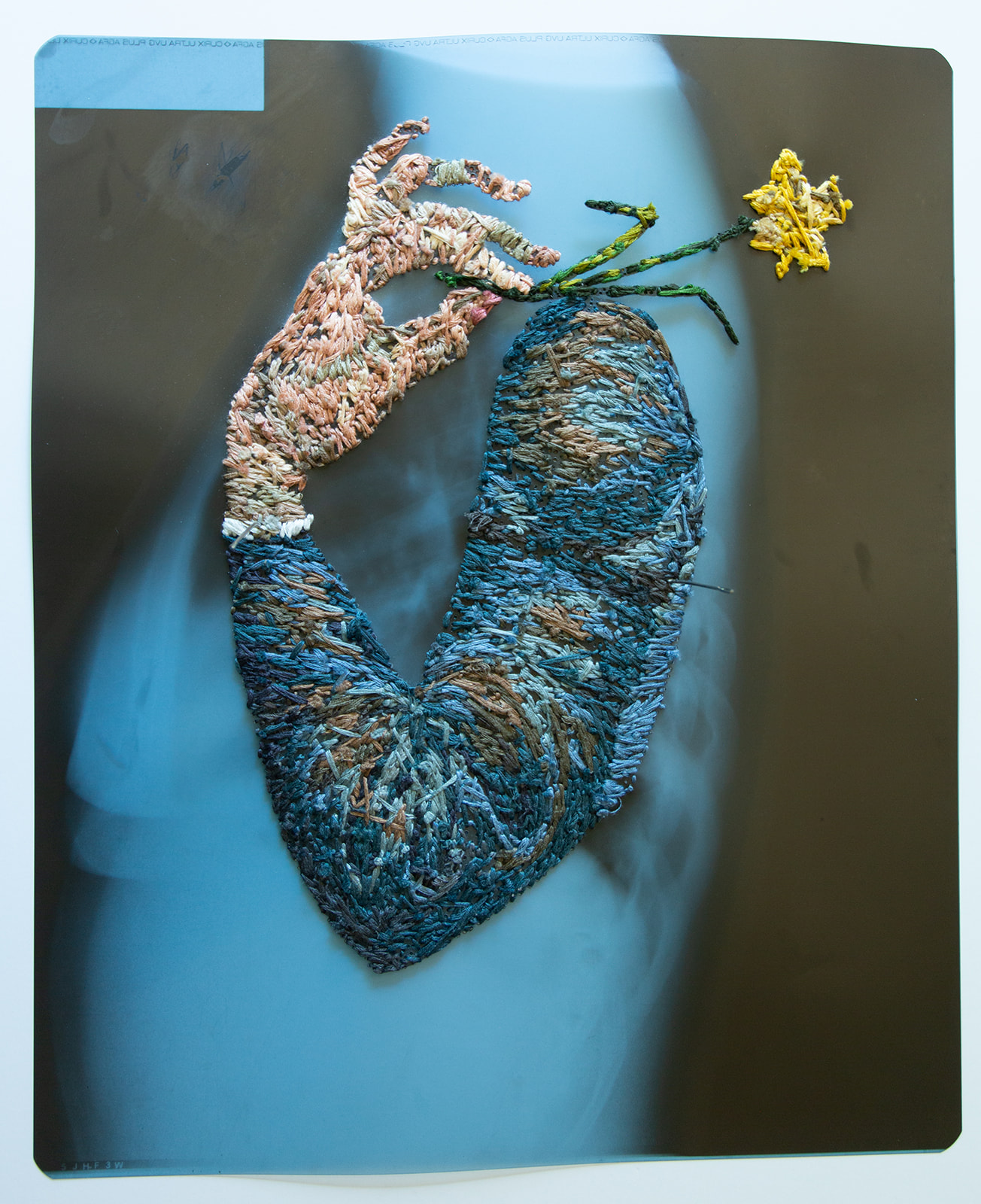 "Matthew Cox ""X-ray with Arm and Flower"""