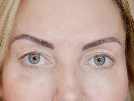 Eyebrows Corrective Treatment