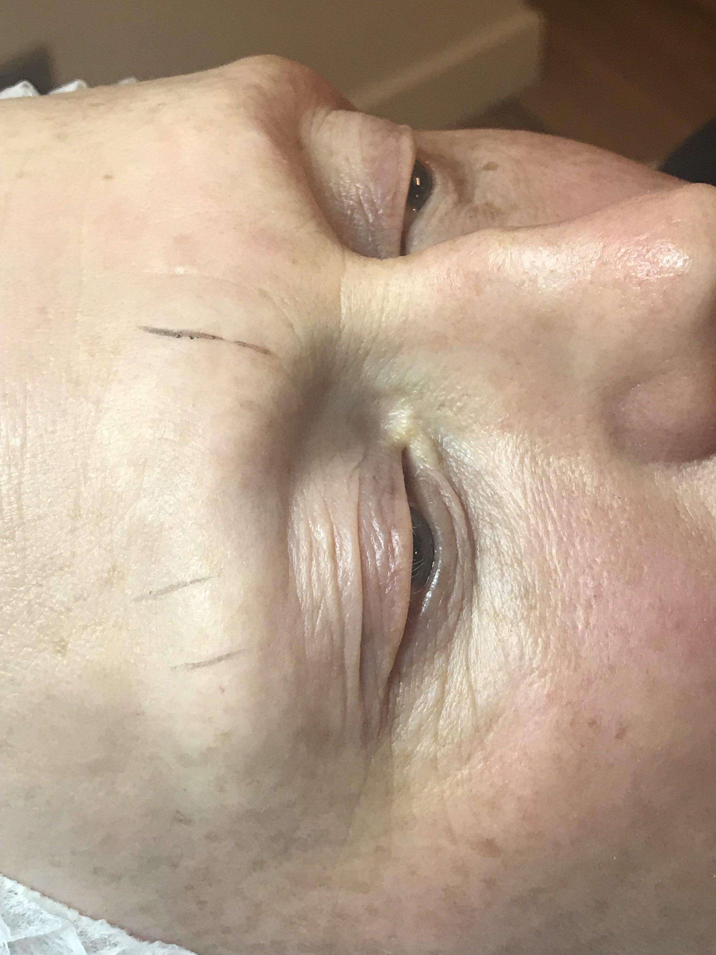 Alopecia/Microblading before
