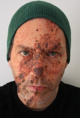 "John O'Connor Self Portrait with Sun Spots, April 4 Photography 13.5"" x 19.5"""