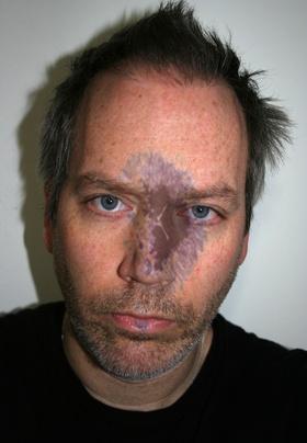 "John O'Connor Self Portrait with Sun Spots Photography 13.5"" x 19.5"""