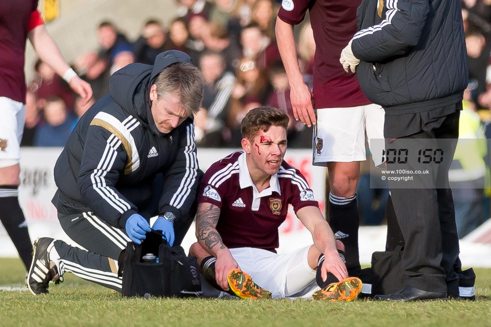 Sam Nicholson injury – 7th February 2015