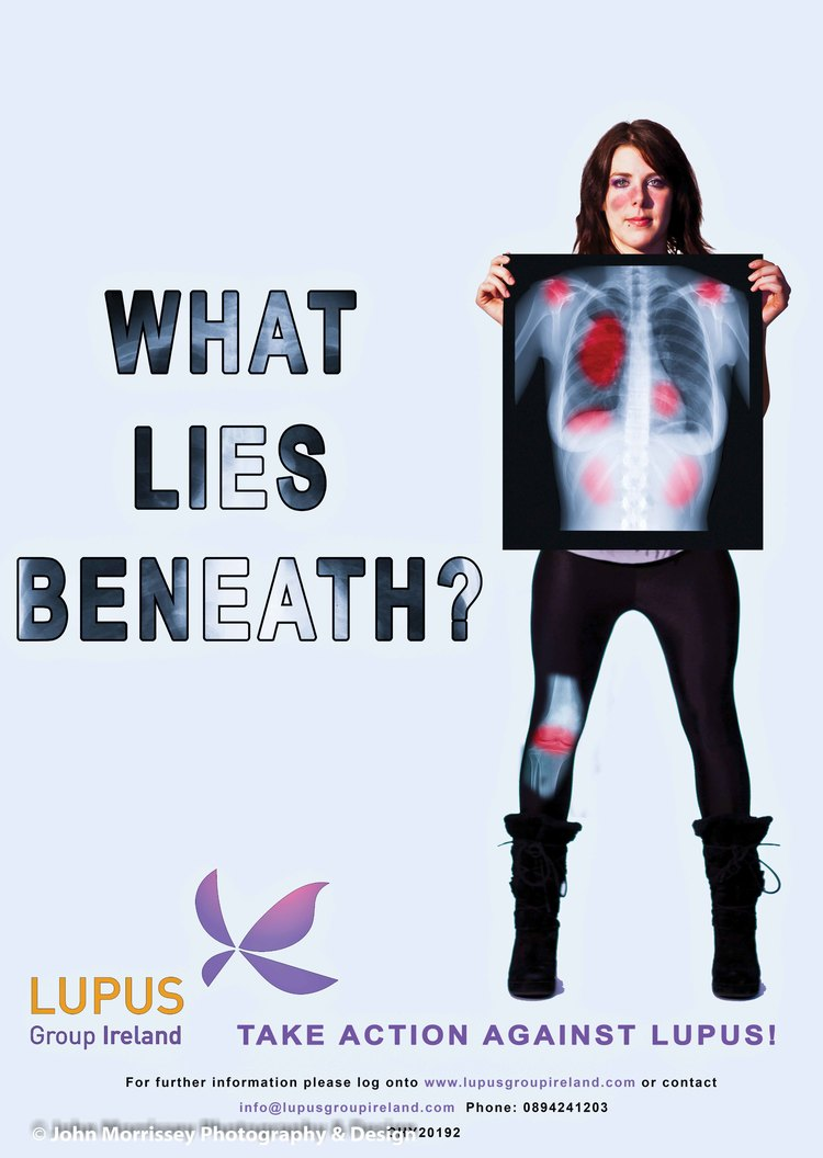 A2-Lupus-Ireland-Poster-female.jpg