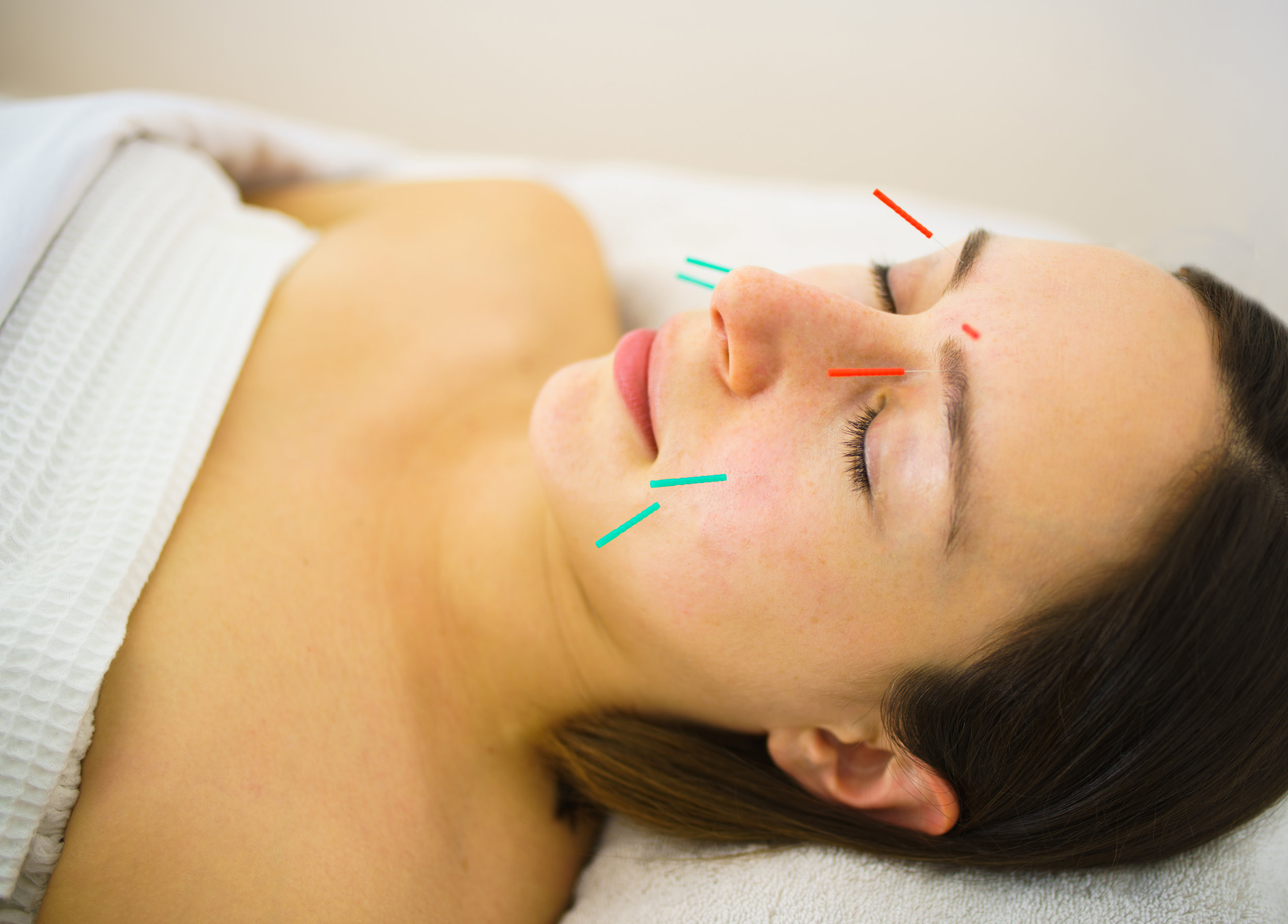 COSMETIC ACUPUNCTURE-NYC.jpg