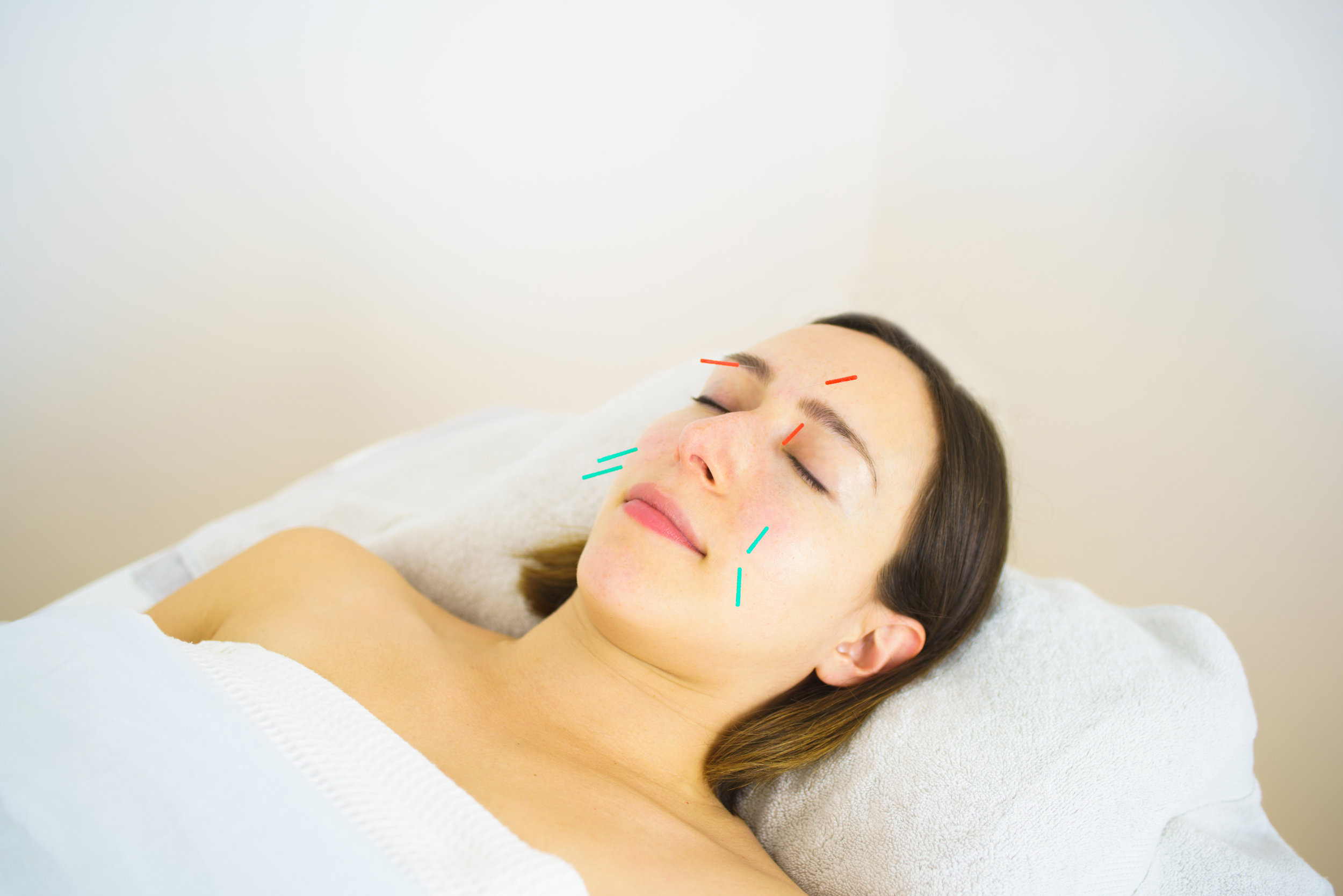 Acupuncture Facial Rejuvenation NYC.jpg