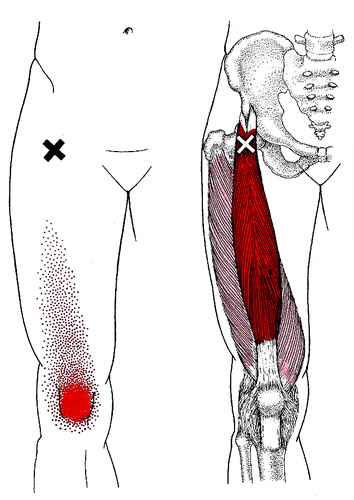 """X"" marks the trigger point that refers pain to the front of the knee."