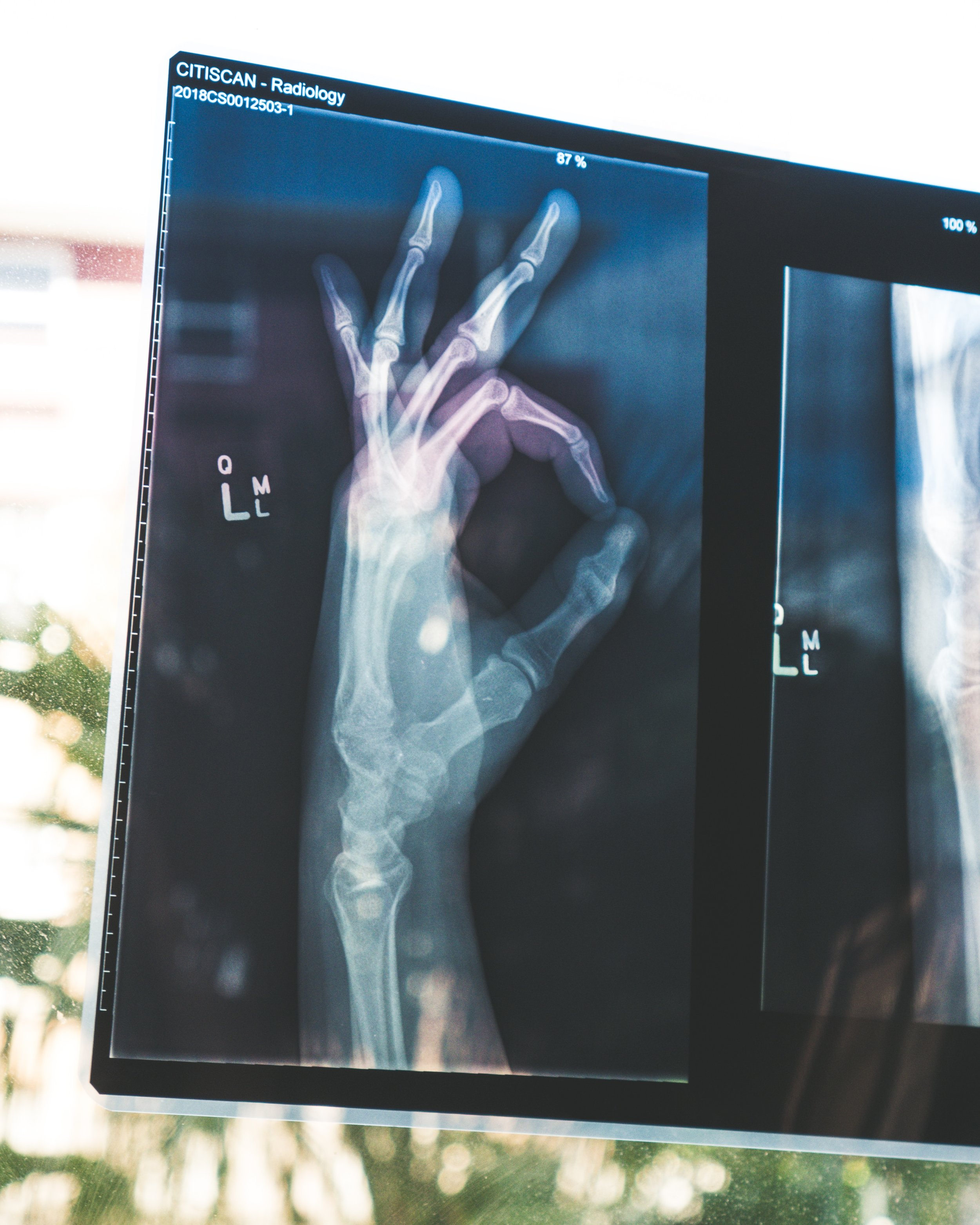 Wrist Fracture Recovery