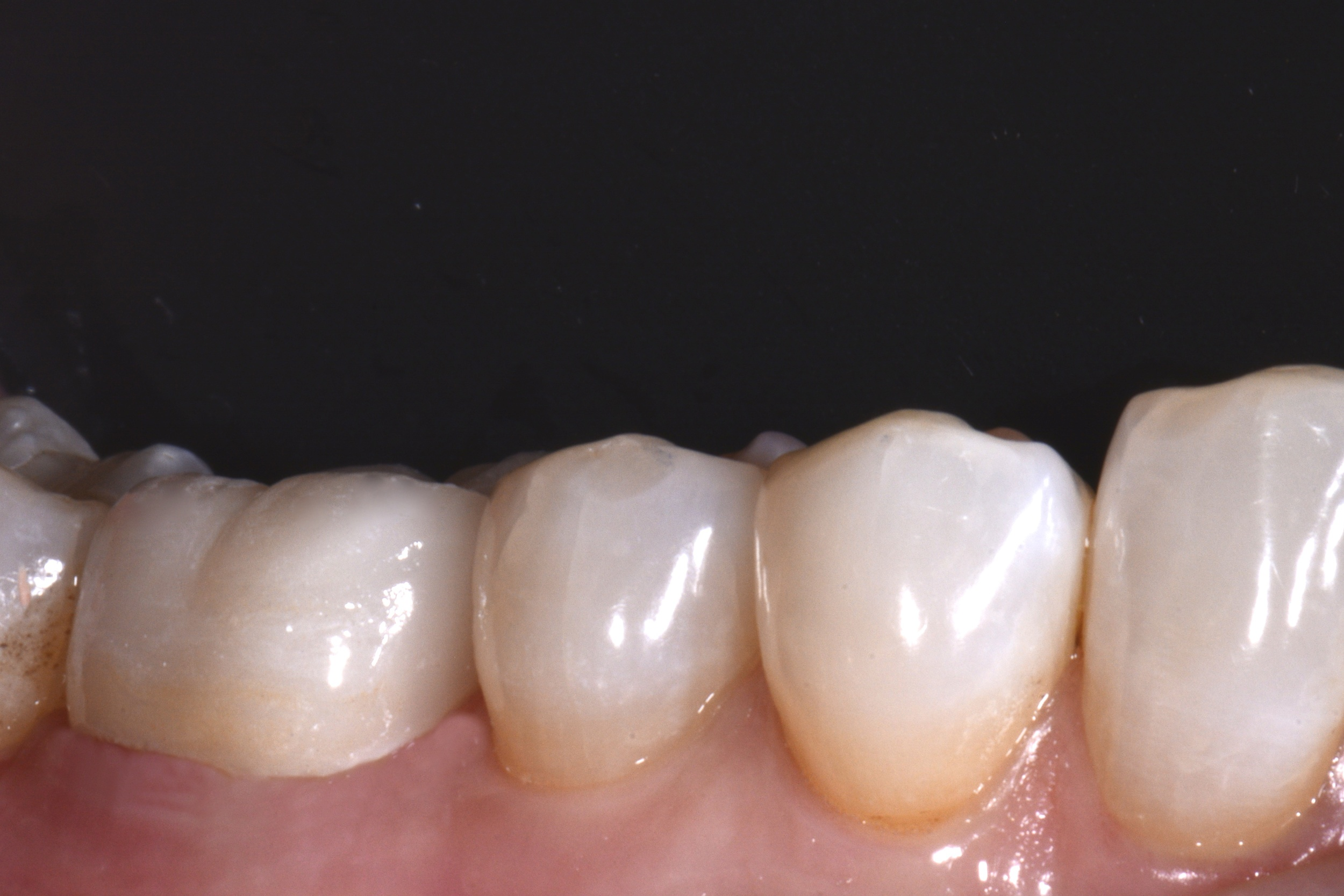 All restorative dentistry + digital dental photography completed by Dr. Matthew Kogan