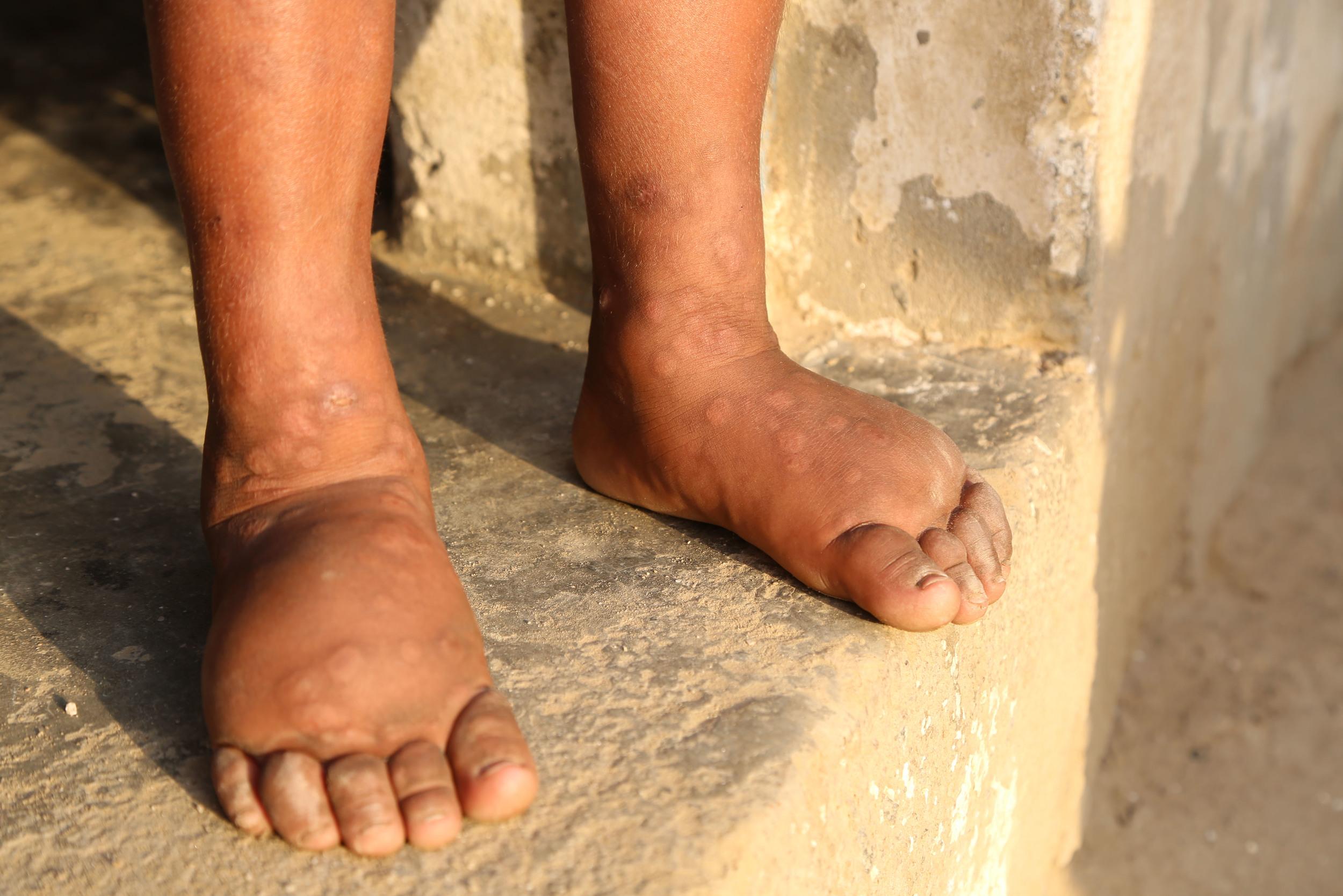 _Swollen Feet (3).jpg