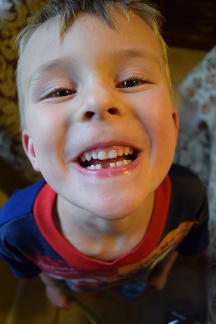 Tad's First (Lost) Tooth!